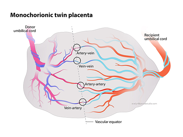 AFTER - Simple placenta illustration using color to explain blood flow from each twin
