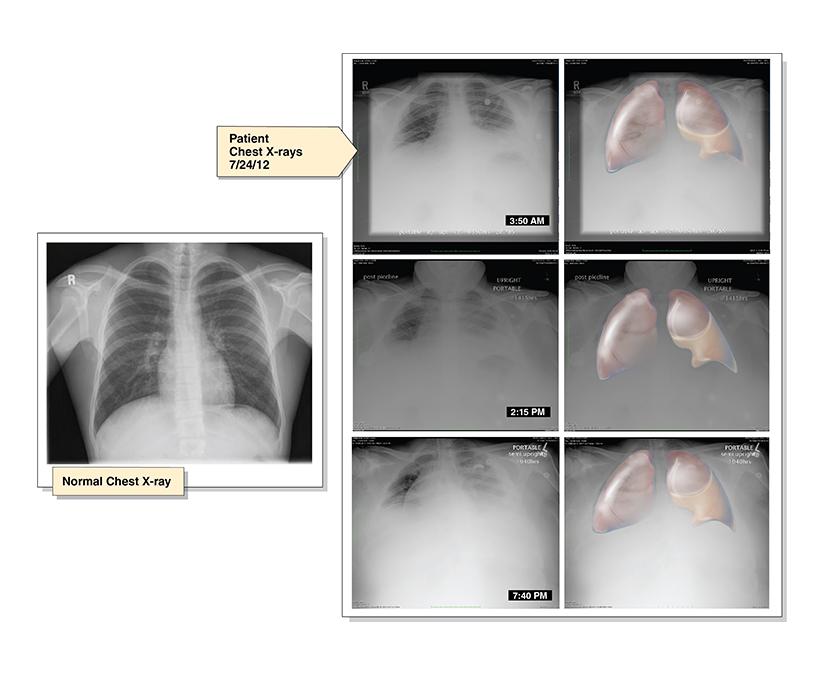 lung_fluid.jpg