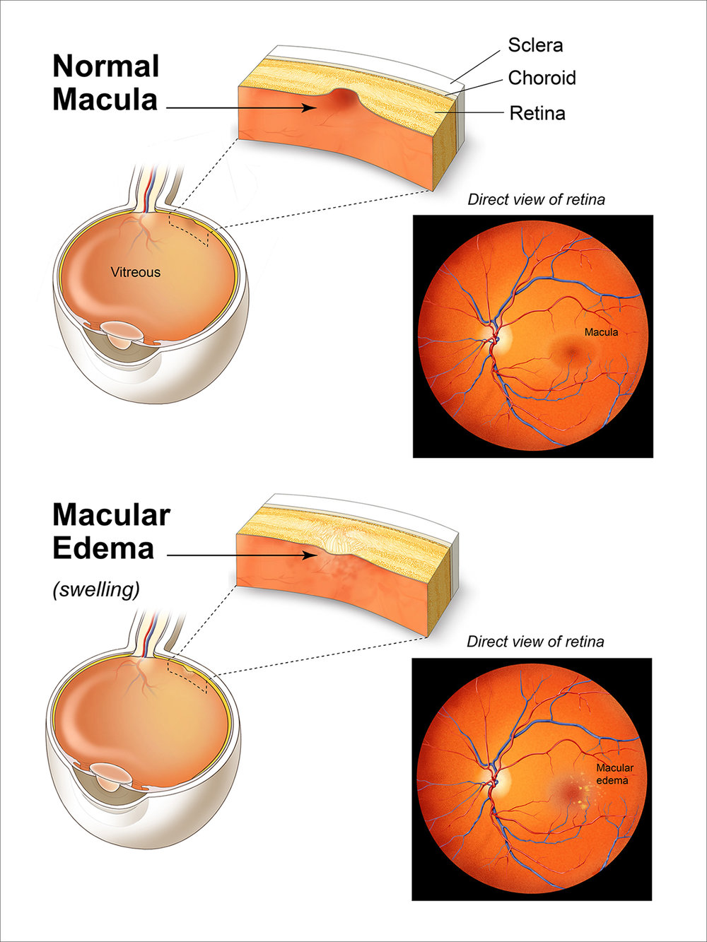 Normal vs Macular Edema.jpg