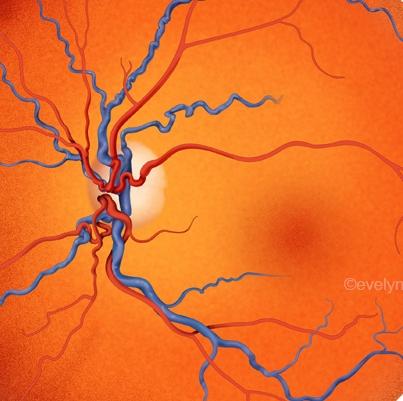 retinaCRVO.jpg