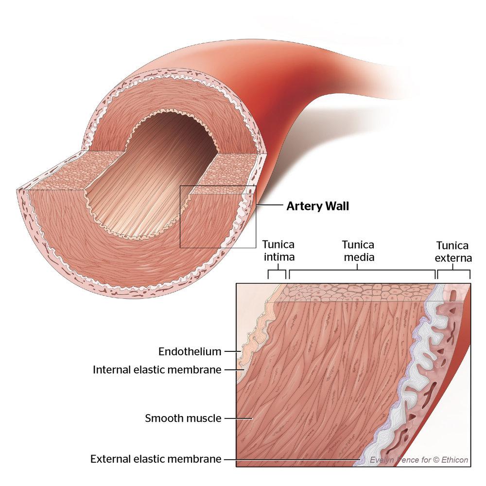 artery02.jpg