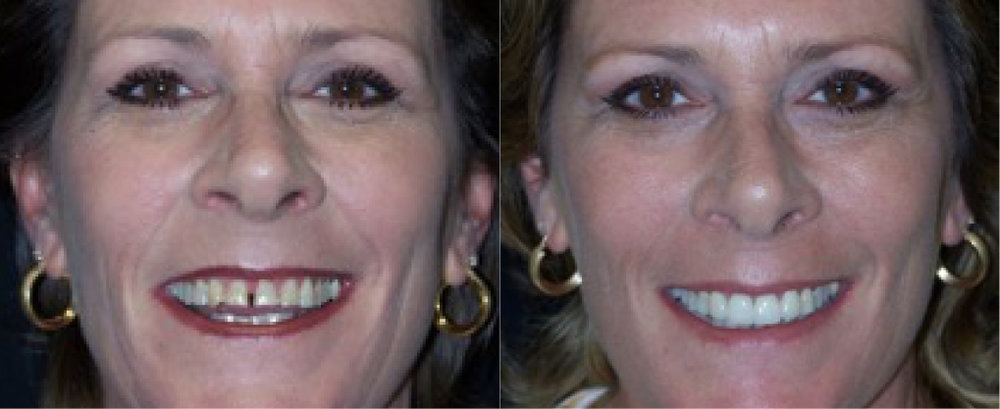 This patient had  tooth whitening  and 4  porcelain veneers .