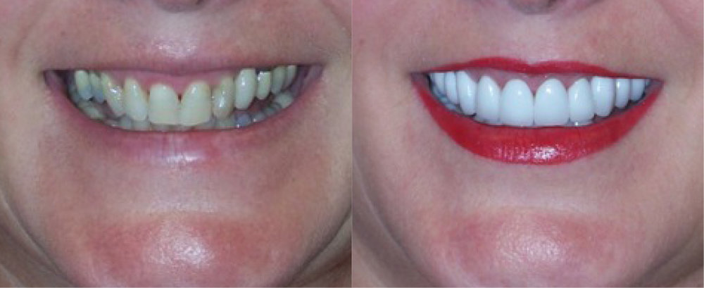 This patient had severe wear and decreased quality of chewing ability. She was treated with full mouth rehabilitation using a combination of  implants  and  crowns .
