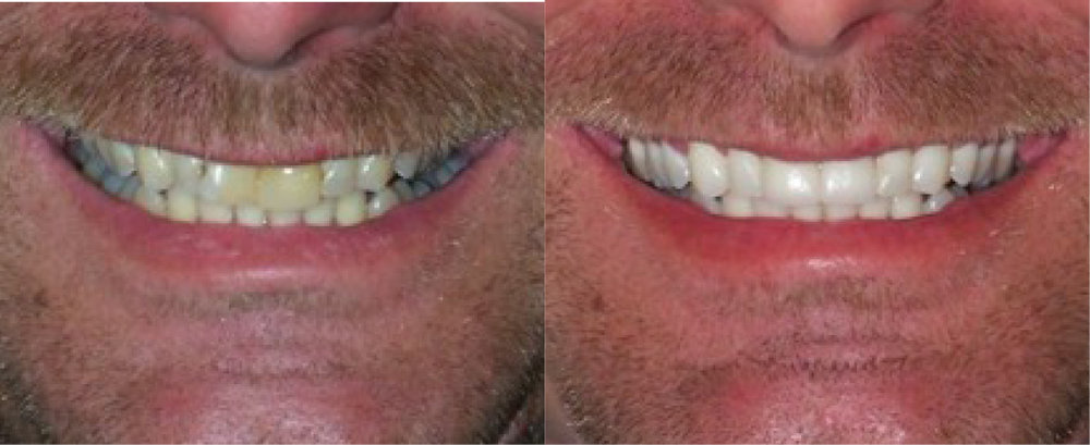 This patient had  whitening  and 2  crowns .
