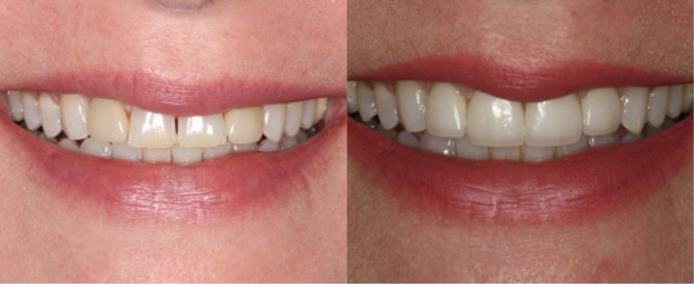 This patient had 4  veneers .