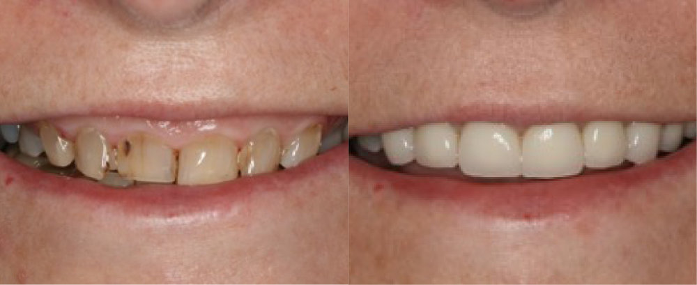This patient had severely weak and fragile teeth and excessive gum tissue.  She was treated with a  gum reduction procedure  and   crowns  .