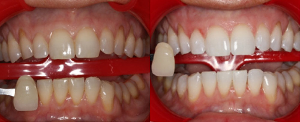 This patient went through our  KOR whitening procedure , the best whitening technique available.