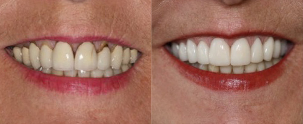 This patient had older crowns with gum recession that looked discolored. She was treated with newer  crowns .
