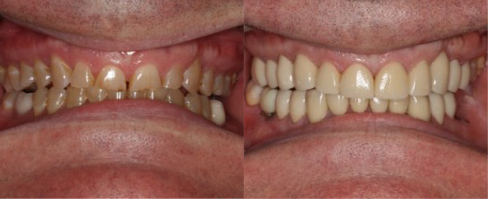 This patient had severe wear .  He was treated with full mouth rehabilitation using  implants  and  crowns .
