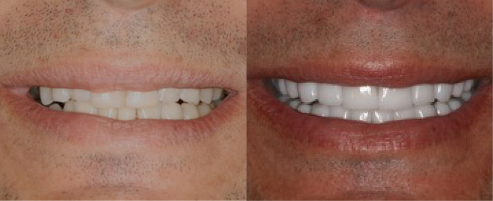 This patient had severe wear and had full mouth rehabilitation with  crowns .