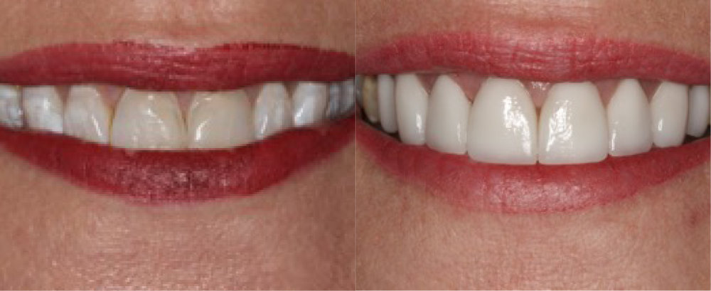 This patient had 8  porcelain veneers  to fix some color issues with her teeth.