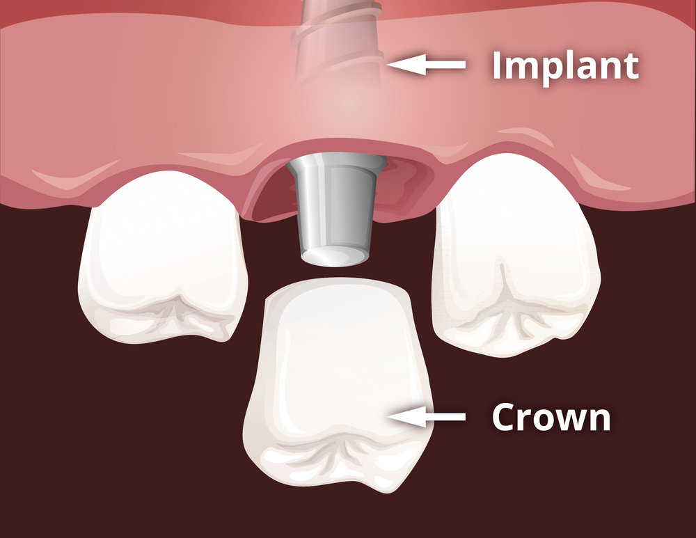 Dental-Implant-Single-Tooth-Replacement-01.jpg