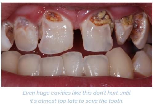 cavities.png