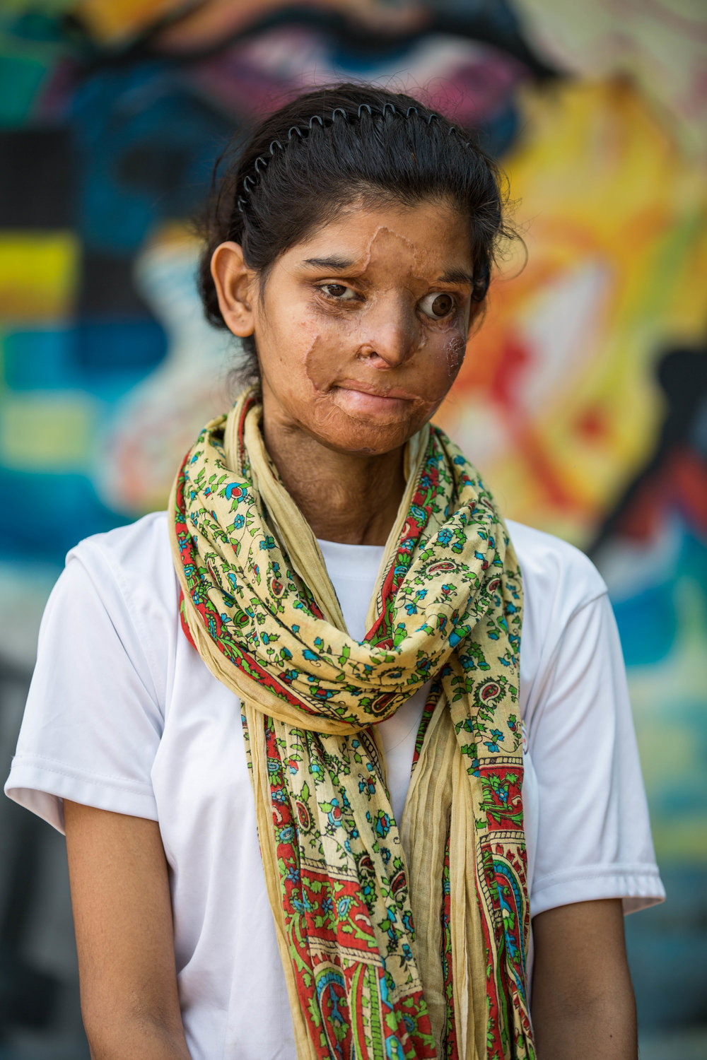 Ritu was 16 when her cousin threw acid on her. She lost her left eye, and her lips were melted together in the attack. She had been a star volleyball player, but because of vision issues after losing her eye, she can no longer play.