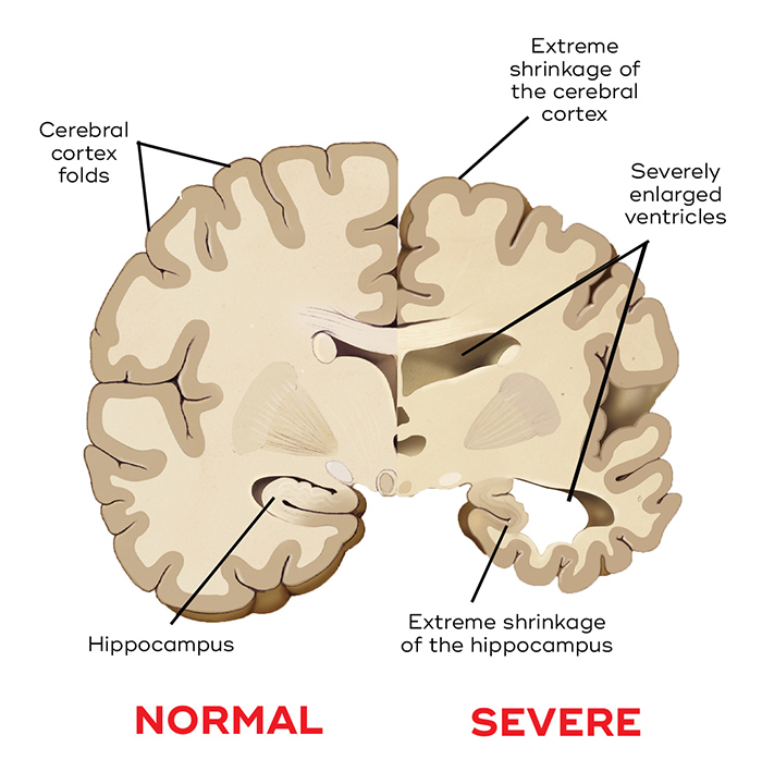 Comparison of a normal brain (left) and degeneration from severe Alzheimer's disease (right).  Queensland Brain Institute