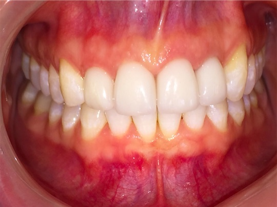 AFTER: Straight, bright and beautiful — patient beams with delight — she can floss easily and has a healthy smile.