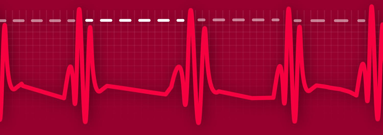 Introducing Sleeping HRV Tracking — Sleep Watch App