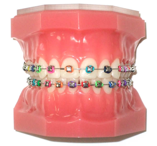 braces-colors