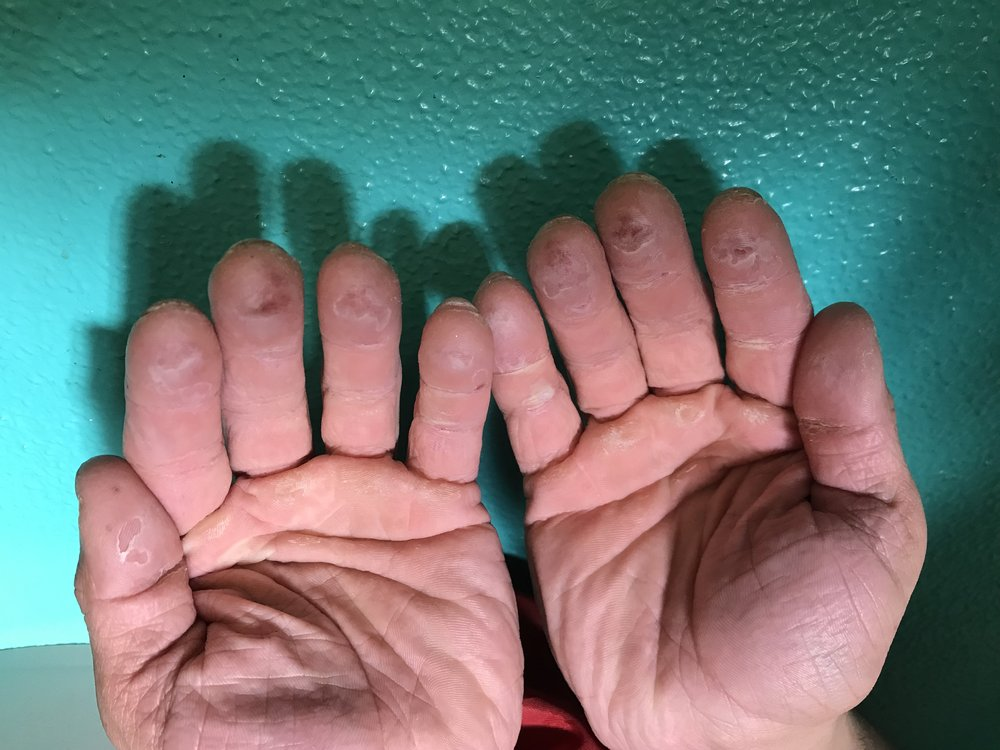 After two weeks in Bishop, your hands are pretty much shredded.