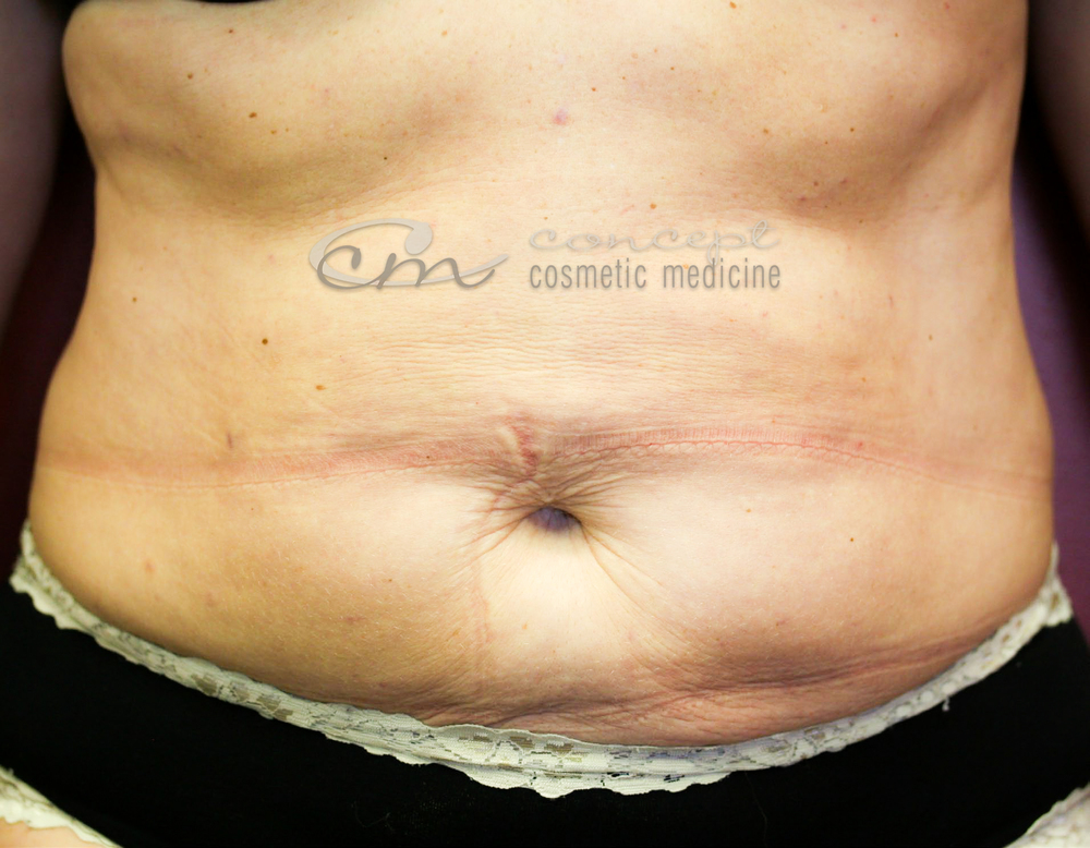 CCM Liposculpture - AFTER