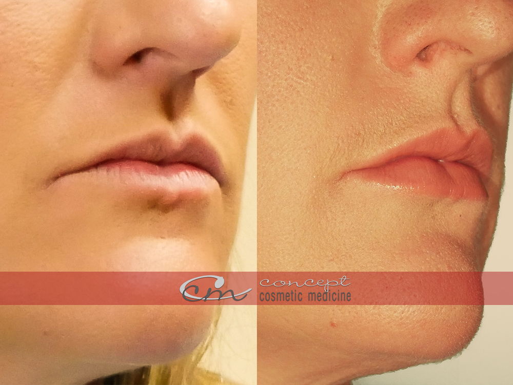 Concept Cosmetic Medicine Lips.jpg