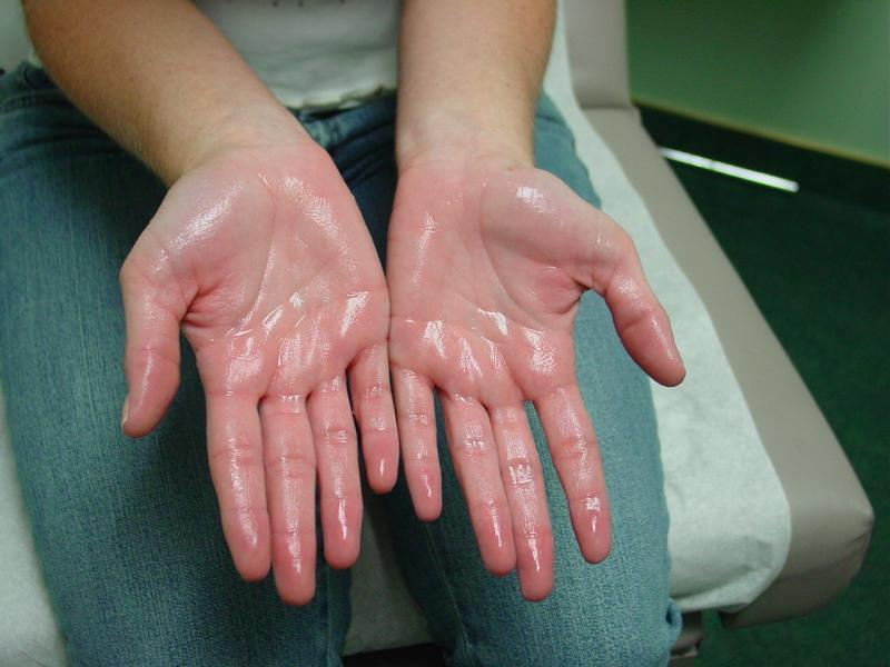 HYPERHIDROSIS - THERE ARE TREATMENTS AVAILABLE