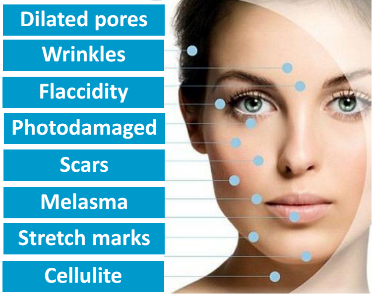 microneedling mayfair