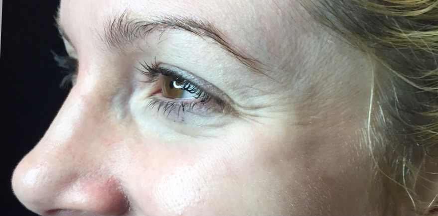 Liesel Holler Botox