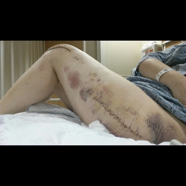 Post Surgical Scars From One Of Her Surgeries.
