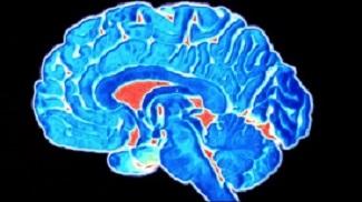 brain-image4.jpg