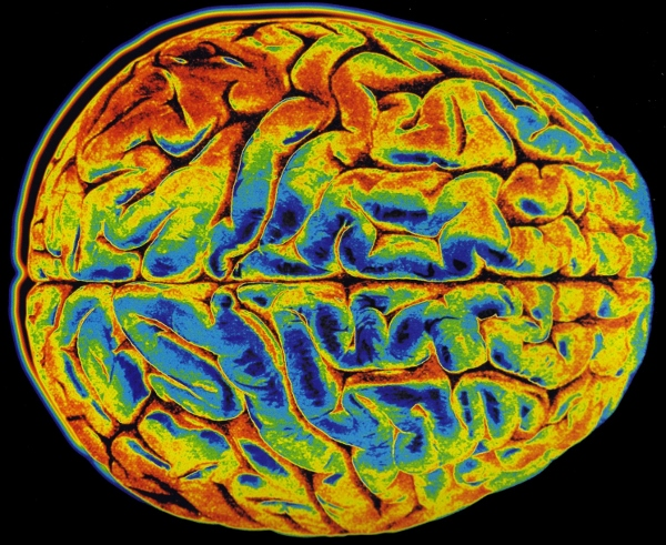 madeleine-brain-imaging-2-technical-sanguinebio-com-600x491.jpg