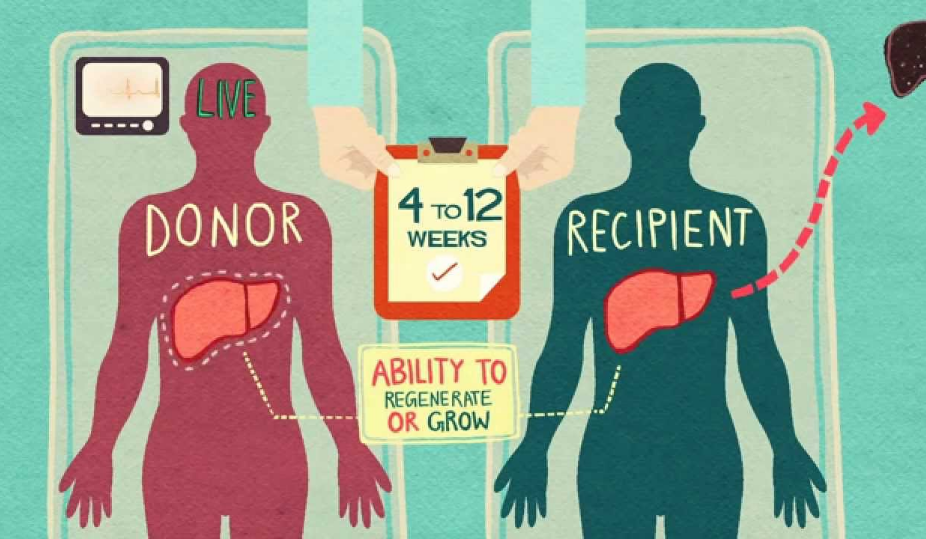 My Sister's Keeper: An Assessment of Living Organ Donation