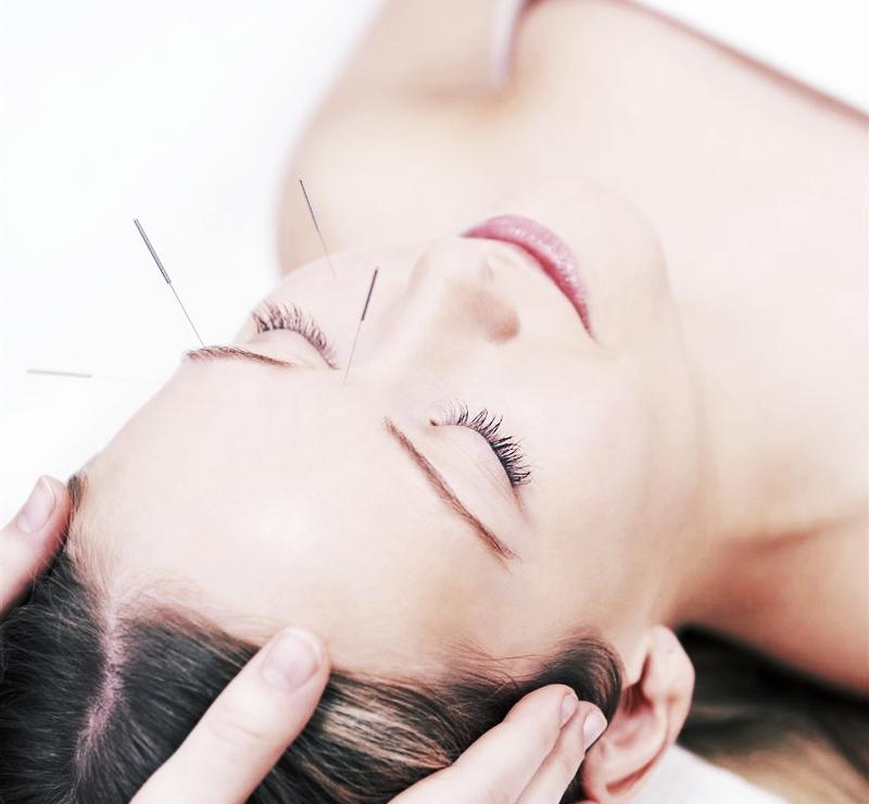 acupuntura-facial.jpg