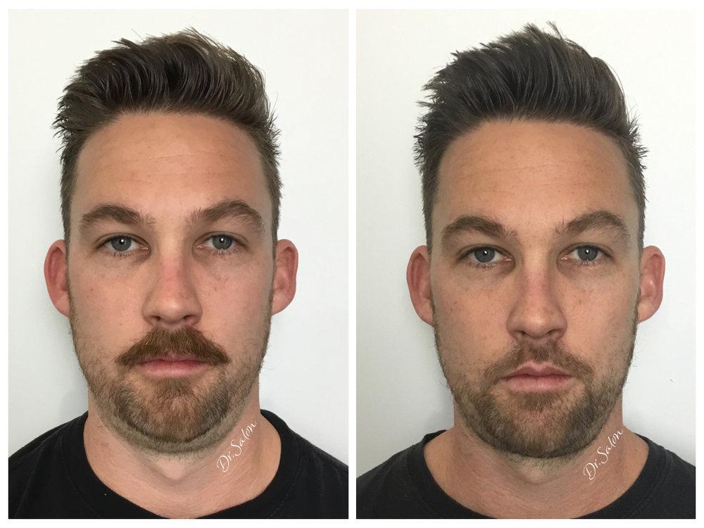 Belkyra chin reduction Perth