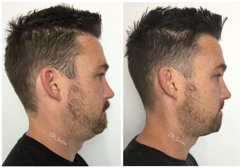Belkyra chin reduction Perth Dr.Salon