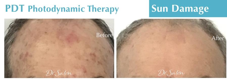 PDT Sun damage treatment Dr.Salon