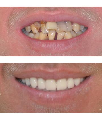 immediate dentures — Implicit Dentures, FOY Denture