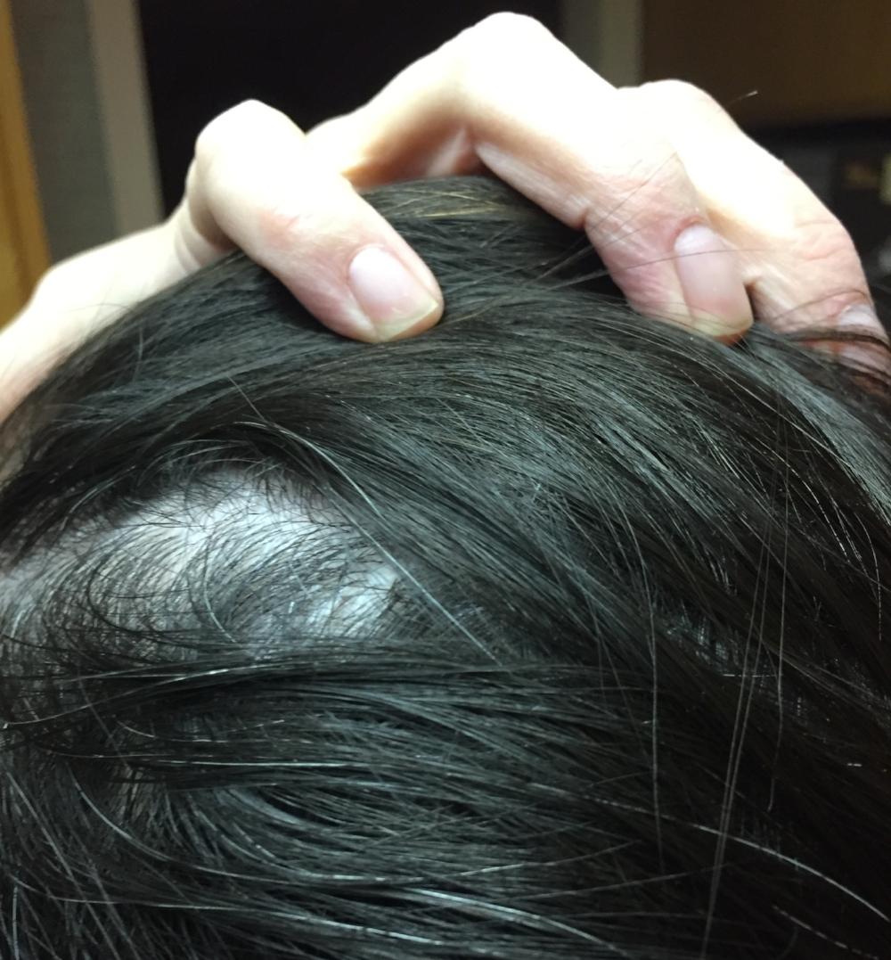 BLTH thinning hair2 .JPG
