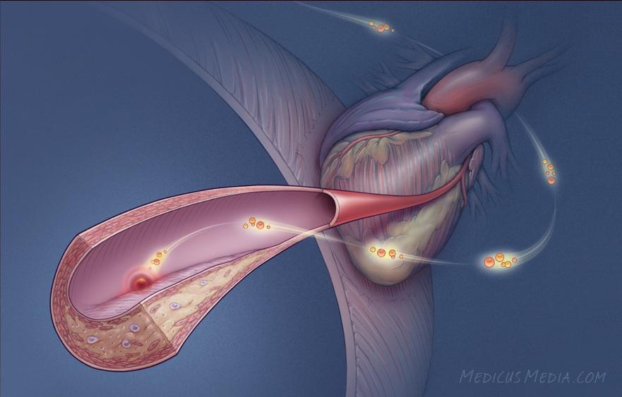CholesterolHeart.jpg
