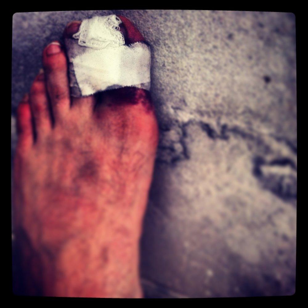 Portrait of a broken toe, July 12, 2013