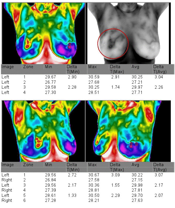 Example Thermography Image