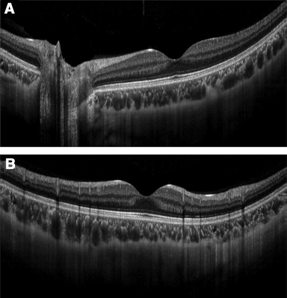 Retinal Image Optometrist Hamilton.jpeg