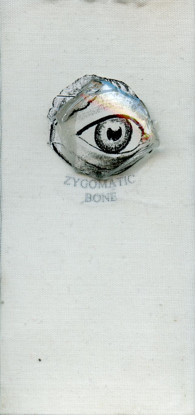 """Zygomatic 2 1/2"""" x 4"""""""