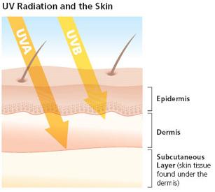 Image source: Skin Cancer Foundation