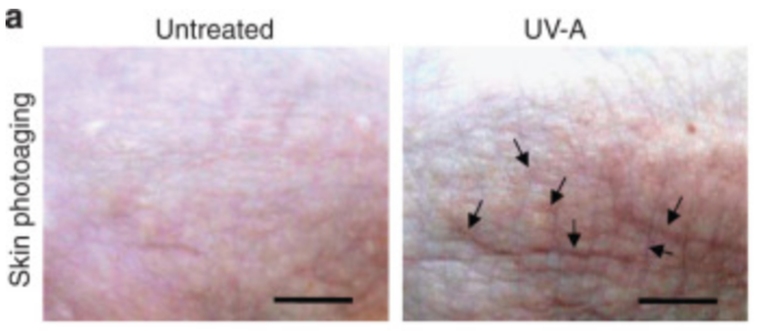 In addition to causing skin cancer, exposure to UV-A rays can also lead to wrinkled, sagging skin, dryness, and age spots  Image source: Larroque-Cardoso et al., 2015