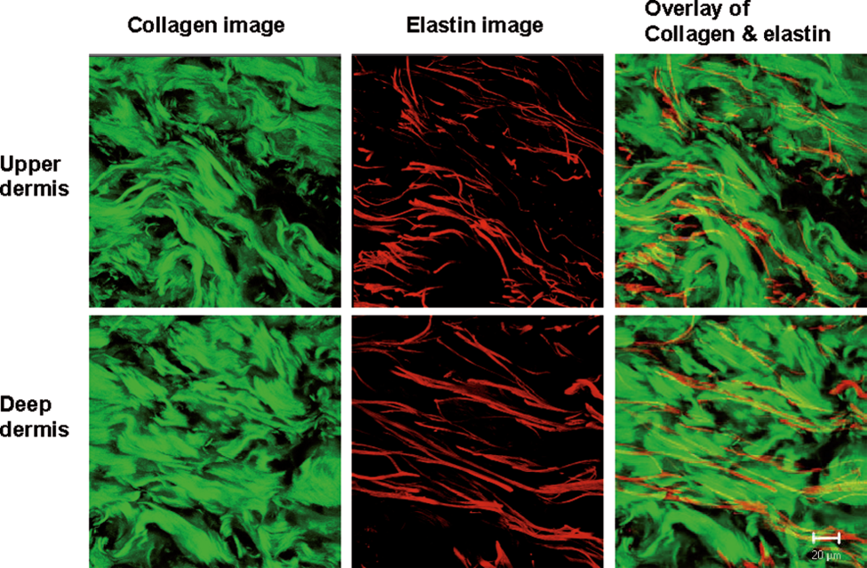 Chen, J., Zhuo, S., Jiang, X., Zhu, X., Zheng, L., Xie, S., Lin, B. and Zeng, H., 2011. Multiphoton microscopy study of the morphological and quantity changes of collagen and elastic fiber components in keloid disease.  Journal of biomedical optics ,  16 (5), pp.051305-051305.