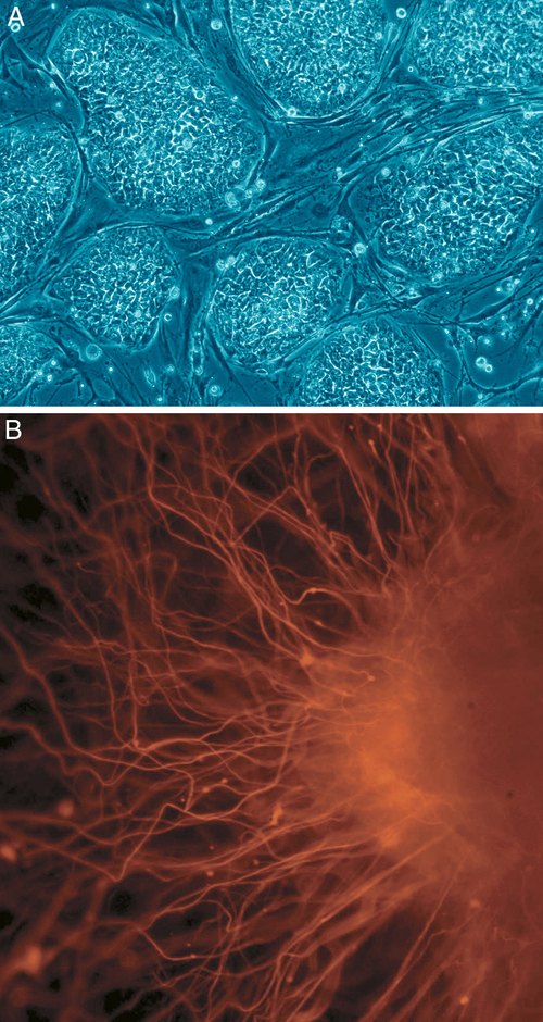 Stem cells (A) are undifferentiated. When differentiated they can become a variety of cells in the body, such as nerve cells (B)
