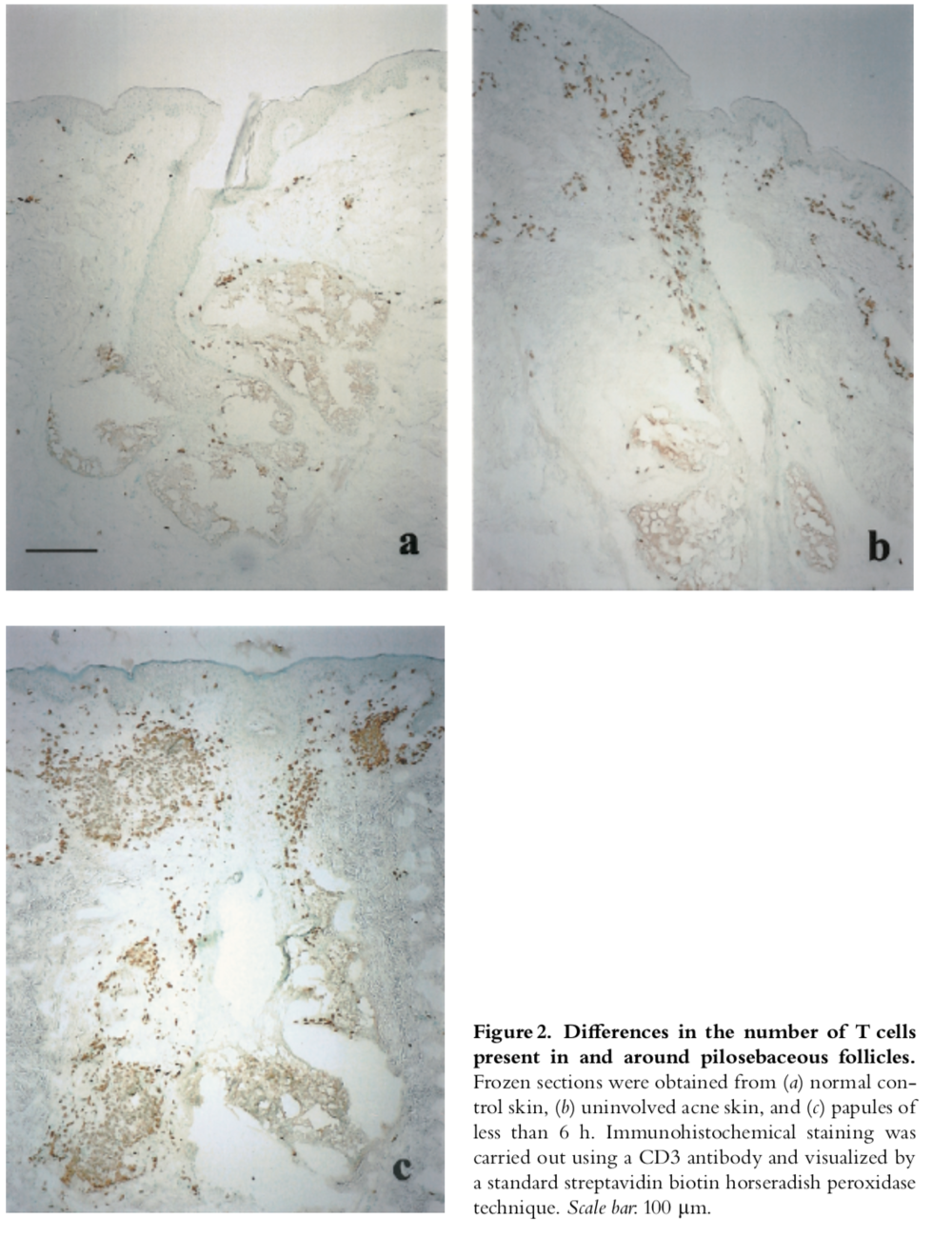 Immune response in the skin of acne patients. Jeremy et al. (2003)