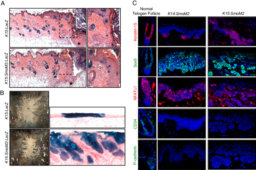 Reiter & Wong (2011) found that skin wounds promoted tumor formation