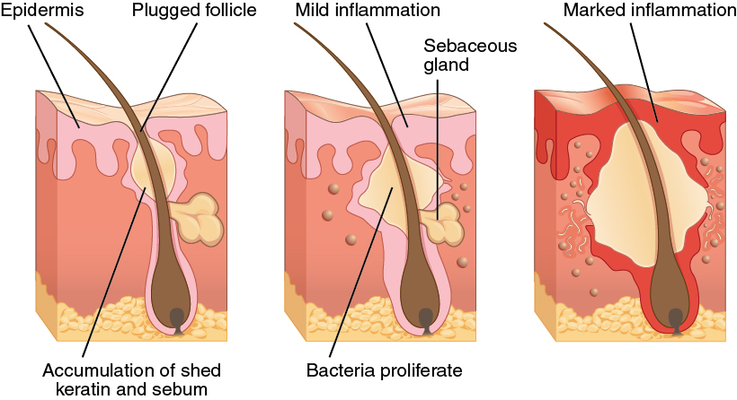 The progression of acne due to over keratinization and bacteria